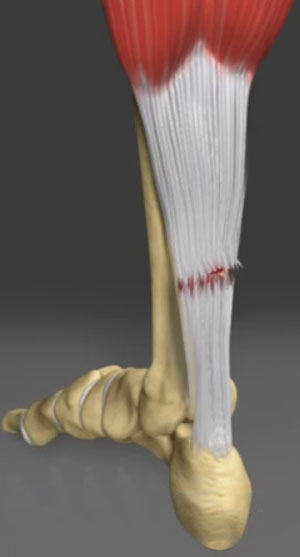 Surgery for a Torn Achilles Tendon